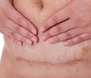 Cuidados para una cicatriz de cesárea