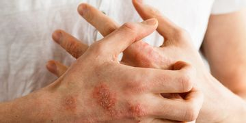 Dermatitis: ¿cuántos tipos hay?