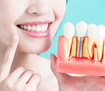 ¿Qué son los Implantes de carga inmediata?