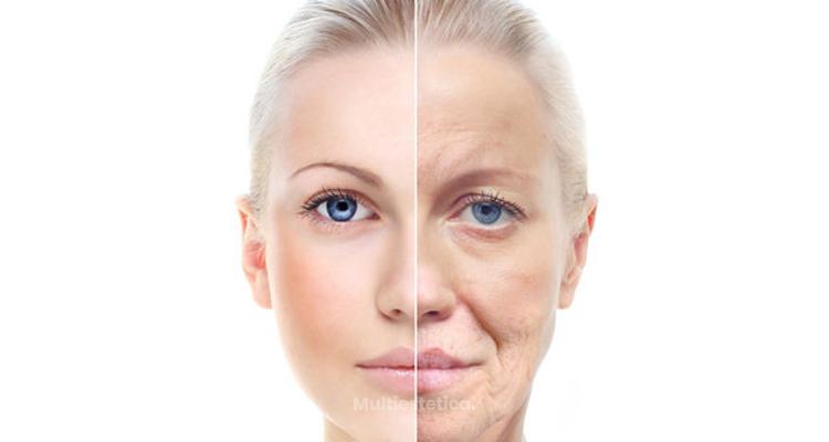 Rejuvenecimiento de piel mediante el láser CO2