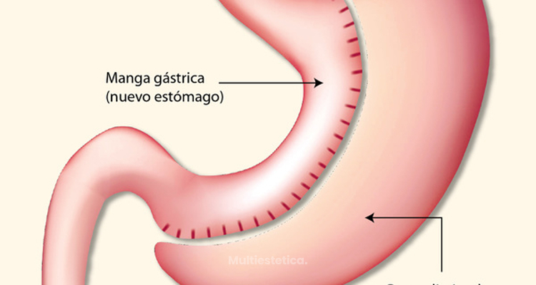 Resultados de la gastrectomía vertical