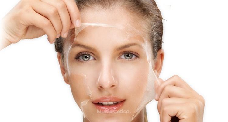 Regeneración celular y rejuvenecimiento facial gracias al peeling