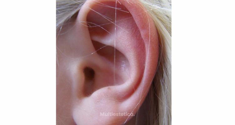 Una oreja bonita es aquella que no llama la atención