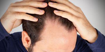 Recuperación definitiva pelo: Microinjerto FUE
