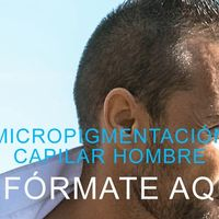 Preguntas y respuestas sobre Micropigmentación Capilar