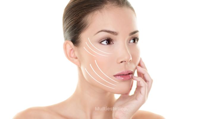 «French touch» el rejuvenecimiento facial con resultados naturales