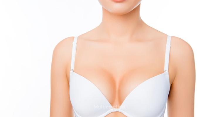 Todo lo que debes saber sobre el aumento de pecho con grasa autóloga