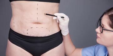 3 consejos para bajar la hinchazón de una abdominoplastia