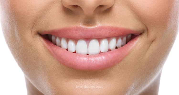 Mejora tu sonrisa sin dolor con las carillas Lumineers