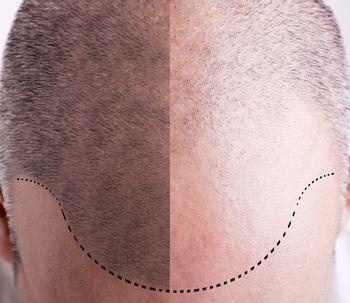 Cómo es el paso a paso de un trasplante de cabello