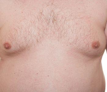 Acumulación de líquidos después de una ginecomastia