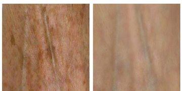 Picosure®, referente mundial para la eliminación de manchas y tatuajes