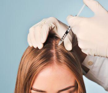 La alopecia: por qué se produce y cómo tratarla