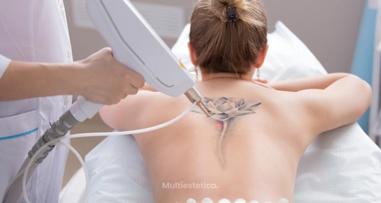 Todo lo que necesito saber para quitarme el tatuaje