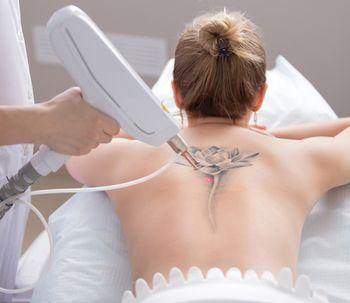 Eliminación De Tatuajes Experiencias Precios Doctores Fotos Y