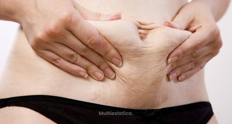 El baipás gástrico y la pérdida de peso