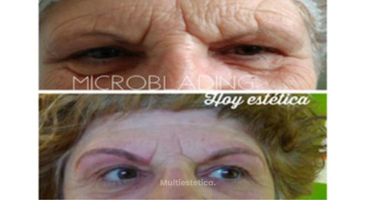 ¿La micropigmentación es un tatuaje?