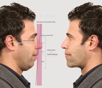 """Armonía Facial en el rostro masculino: """"Power Face"""""""