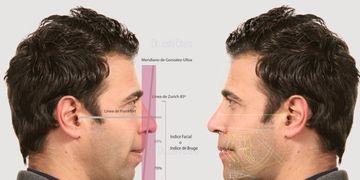 Armonía Facial en el rostro masculino: