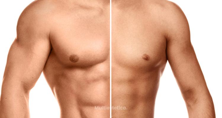 ¿Cómo se hace un aumento de pectorales?