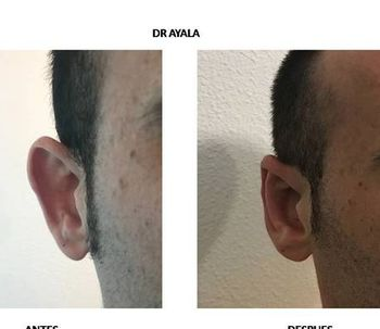 Otoplastia, ¿cómo lo hago y por qué? DR Ayala - ClínicaOtoSalud