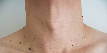 Entrevista Comyce: Todo sobre la eliminación de verrugas