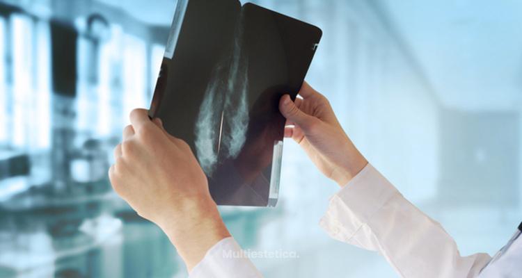 Mamoplastia de aumento con anestesia local