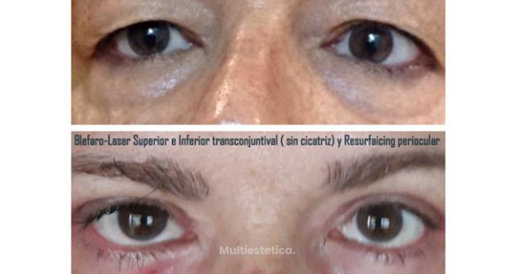 Diferencias entre la blefaroplastia sin cirugía y con cirugía