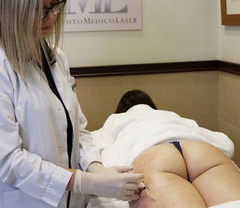 Mesoterapia contra la celulitis dura
