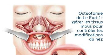 Ostéotomie de Le Fort 1 : gérer les tissus mous pour contrôler les modifications du nez