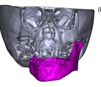 Mandibular hypoplasia and narrow airway in goldenhar syndrome