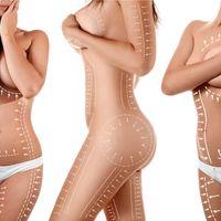 Motivos por los que se recurre a la cirugía estética