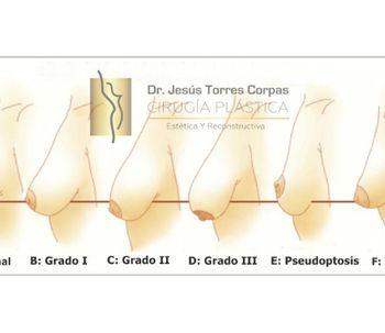 Mastopexia con prótesis ¿anatómicas o redondas?