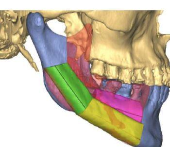 La reconstrucción facial con la tecnología 3D