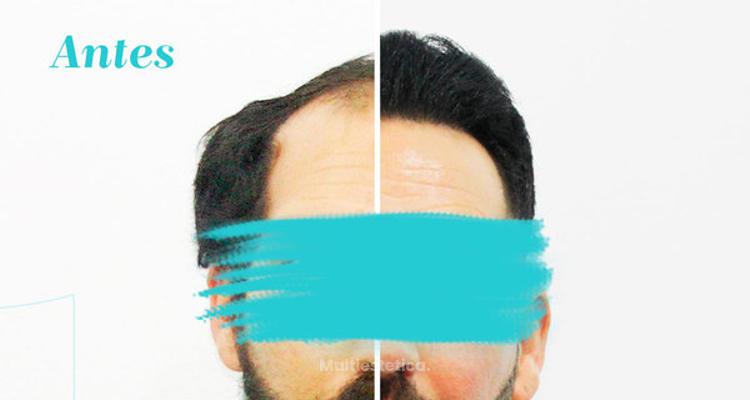 El auge del implante de pelo en el mundo