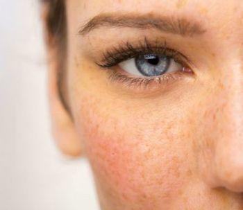 Manchas blancas en la piel, cuáles son las causas