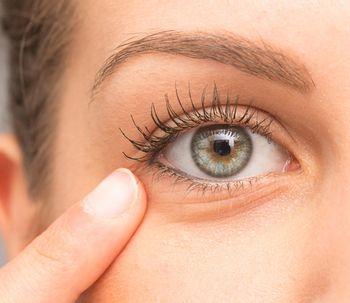 ¿Cómo se puede eliminar las bolsas en los ojos y las ojeras?