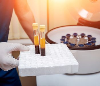 Plasma Rico en Plaquetas: ¿efectos secundarios?