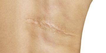 La técnica que oculta las cicatrices: Micropigmentación
