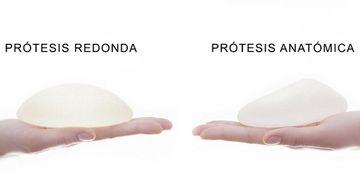 Prótesis mamarias para aumento de senos: tipos, tamaños, formas y rellenos