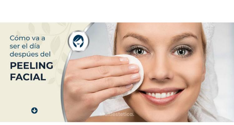 Después de un peeling facial, ¿me puedo dar maquillaje?