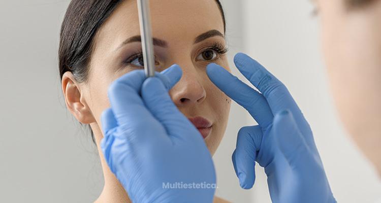 Causas de la nariz torcida y cómo corregirla