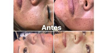 BBGlow meso Face - nuevo tratamiento magico!