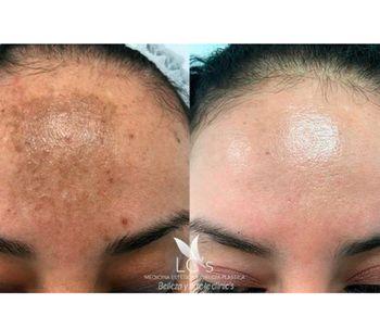 ¿Por qué pueden aparecer manchas en la cara?