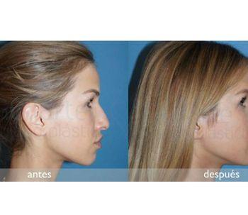 Rinoplastia ¿cómo tratar el dorso nasal?