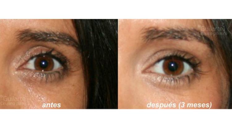 Rejuvenecimiento periorbitario con ácido hialurónico ¿cómo quitar las ojeras? ¿cómo eliminar los ojos hundidos?