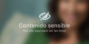 Entrevista Centro Médico Mercedes Eguiluz: Tratamientos para eliminar cicatrices