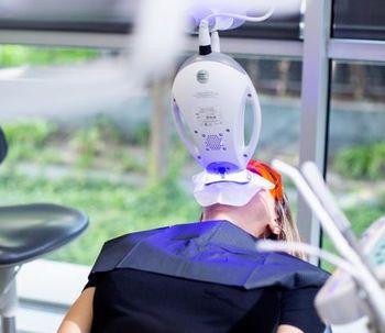 Cuidados después de un blanqueamiento dental