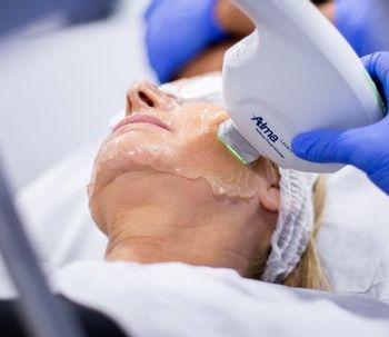 Nuevos tratamientos con láser
