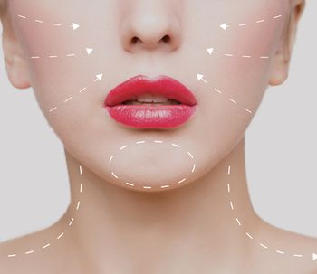 Entrevista Dra. Consol Montilla: ¿Qué son los rellenos faciales?